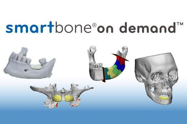 SmartBone on demand